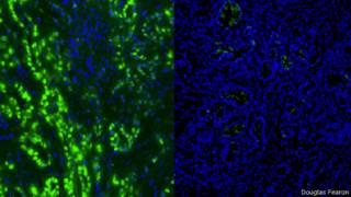 Células cancerígenas do pâncreas antes e depois | Foto: Douglas Fearon / Universidade de Cambridge