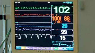 Monitor de batimentos cardíacos em hospital (Arquivo/PA)