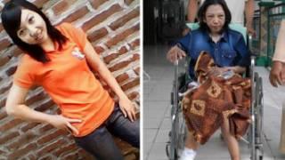 被虐打的印尼佣工厄維阿納的兩張資料照片