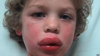 niño con el labio hinchado