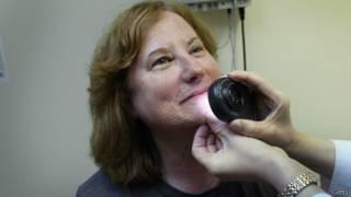 طبيبة تقوم بفحص جلد إحدى المصابات بسرطان الجلد
