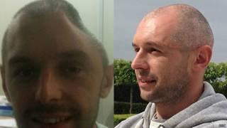 Lee Charie antes e depois do implante da prótese (BBC)