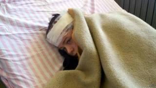 Сирия: раненый ребенок в Хаме