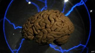 Cérebro. AFP