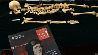 Скелет короля Ричарда в Университете Лестера