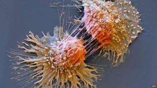 कैंसर की कोशिकाएं