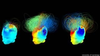 निष्क्रिय दिमाग़ वाले मरीज़
