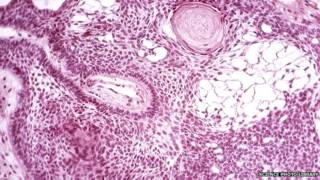 Tumor cerebral / Crédito: Science Photo Library