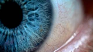 Alzheimer's eye diagnosis