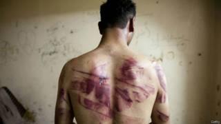 Vítima de abusos (Foto: Getty)