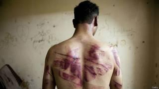 Sirio víctima de tortura