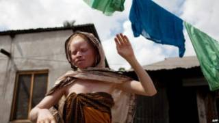 Bamwe mu bapfumu batekereza ko ibice by'imibiri y'abanyamweru izana ubukungu