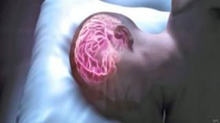 Mapa cerebral do sono | Foto: SPL