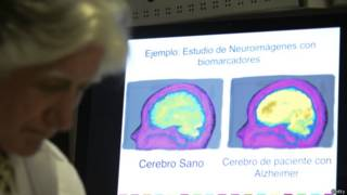 Foto de cerebro afectado por Alzheimer