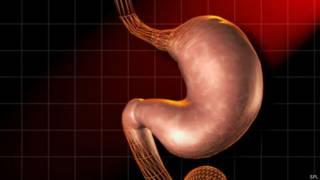 पेट की तस्वीर