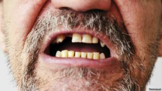 Очень плохие зубы
