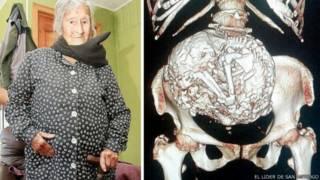 Idosa descobre que carrega feto mumificado há mais de 60 anos
