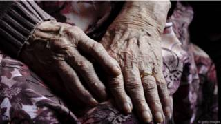 Ученые пытаются найти панацею от болезни Альцгеймера