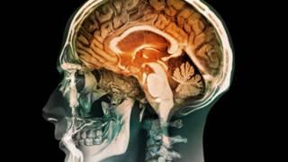 只有半個大腦能正常生活嗎?
