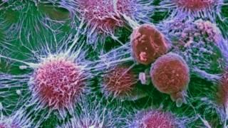 Раковые клетки в почке человека