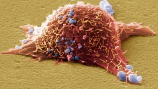 Клетка рака кожи