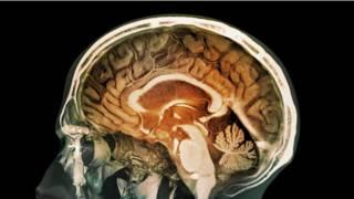 Halüsinasyonların nedeni beyindeki kısa kıvrımlar mı?