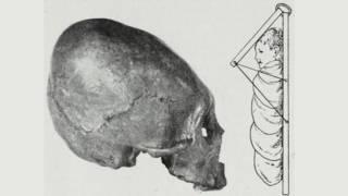 Un diagramada de una cuna para modificar el cráneo de un bebé
