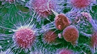Ученые: рак - не случайность, а результат вредных привычек