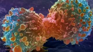 Dez gráficos que explicam o impacto do câncer no mundo