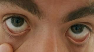Глаза с похмелья