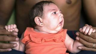 Jariri mai cutar Zika