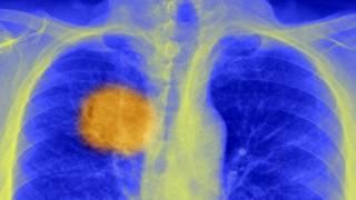 Будет ли прорыв в лечении рака