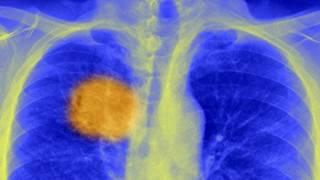 Una radiografía