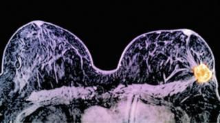 Nova técnica que combina 2 drogas reduz câncer de mama 'dramaticamente' em 11 dias