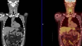 """المسح الإشعاعي """"ربما يساعد على تجنب عمليات جراحية خطرة"""" لمرضى السرطان"""