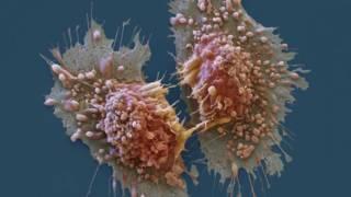 اختبار تقنية جديدة لقياس فاعلية العقاقير في القضاء على السرطان