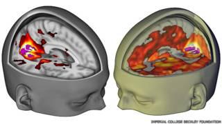 La imagen del cerebro bajo los efectos del LSD por la que los científicos esperaron 50 años