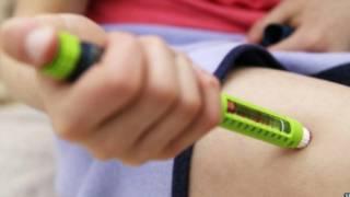 تجربة رائدة للوقاية من النوع الأول من مرض السكري تبدأ في اسكتلندا