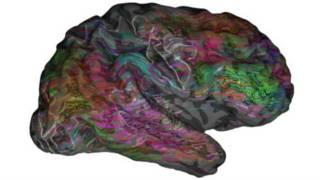 Pesquisa revela 'mapa' da linguagem no cérebro