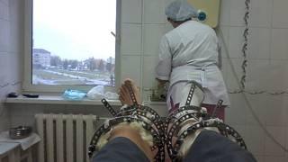 La dolorosa, costosa y cada vez más popular operación para alargar las piernas y aumentar de estatura