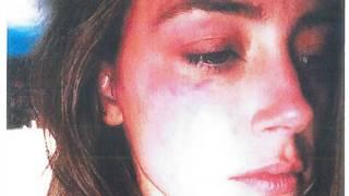 Amber Heard presentó en la justicia una foto con lesiones en un ojo.