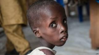 طفل ولاية بورنو يعاني من سوء التغذية أنقذه الجيش النيجيري من منطقة تسيطر عليها جماعة بوكو حرام