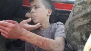 عبد الله عيسى لاجئ فلسطيني لا يتعدى سنه 12 عاما وهو من عائلة فلسطينية لاجئة في سوريا