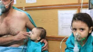 Korban serangan 'gas klorin' di Suriah