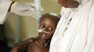 Нігерія: 75 тис дітей можуть померти від голоду