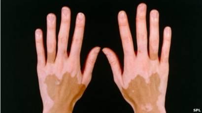 manchas blancas en la piel vitiligo es contagioso