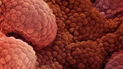 Resultados de la prueba de cáncer de próstata pca3