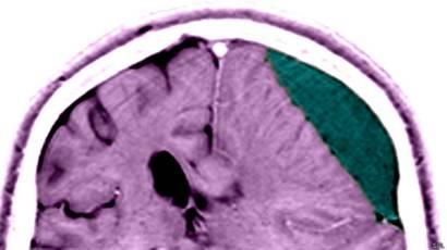 Golpe en la parte posterior de la cabeza sin lesiones