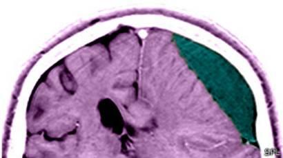 Hinchazón cerebral después de un trauma