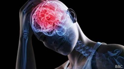Ilustración de un derrame cerebral